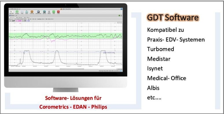 ctg_software_Versionen